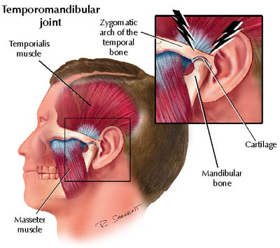 TMJ Disorders and Treatments
