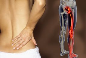 webmd rm photo of lower back pain