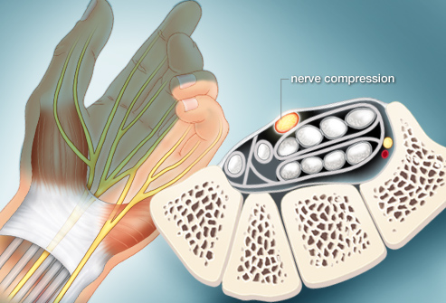 webmd rf photo of nerve compression